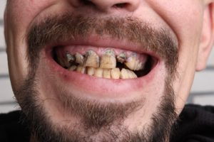 America's poor routinely go without dental care.